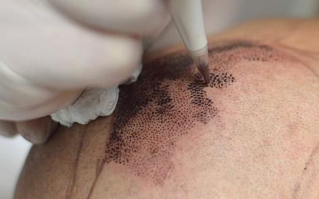 trattamento_tricopigmentazione_450