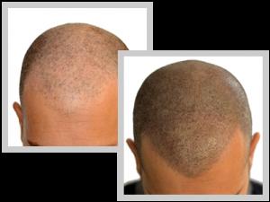 tricopigmentazione-prima-dopo