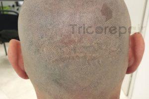 Tricopigmentazione ricostruttiva della cicatrice - foto dopo il trattamento