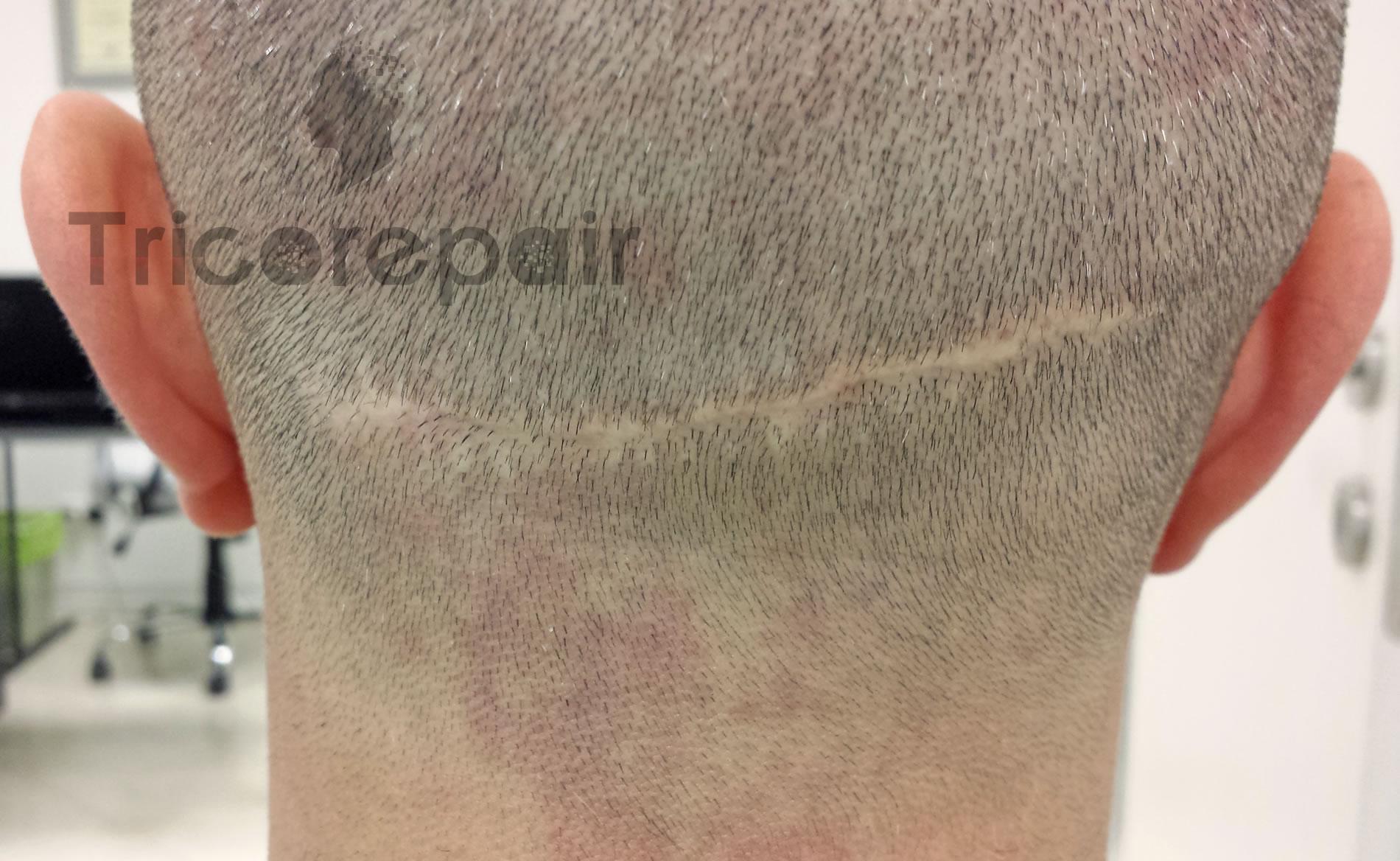 Tricopigmentazione cicatrice da autotrapianto STRIP