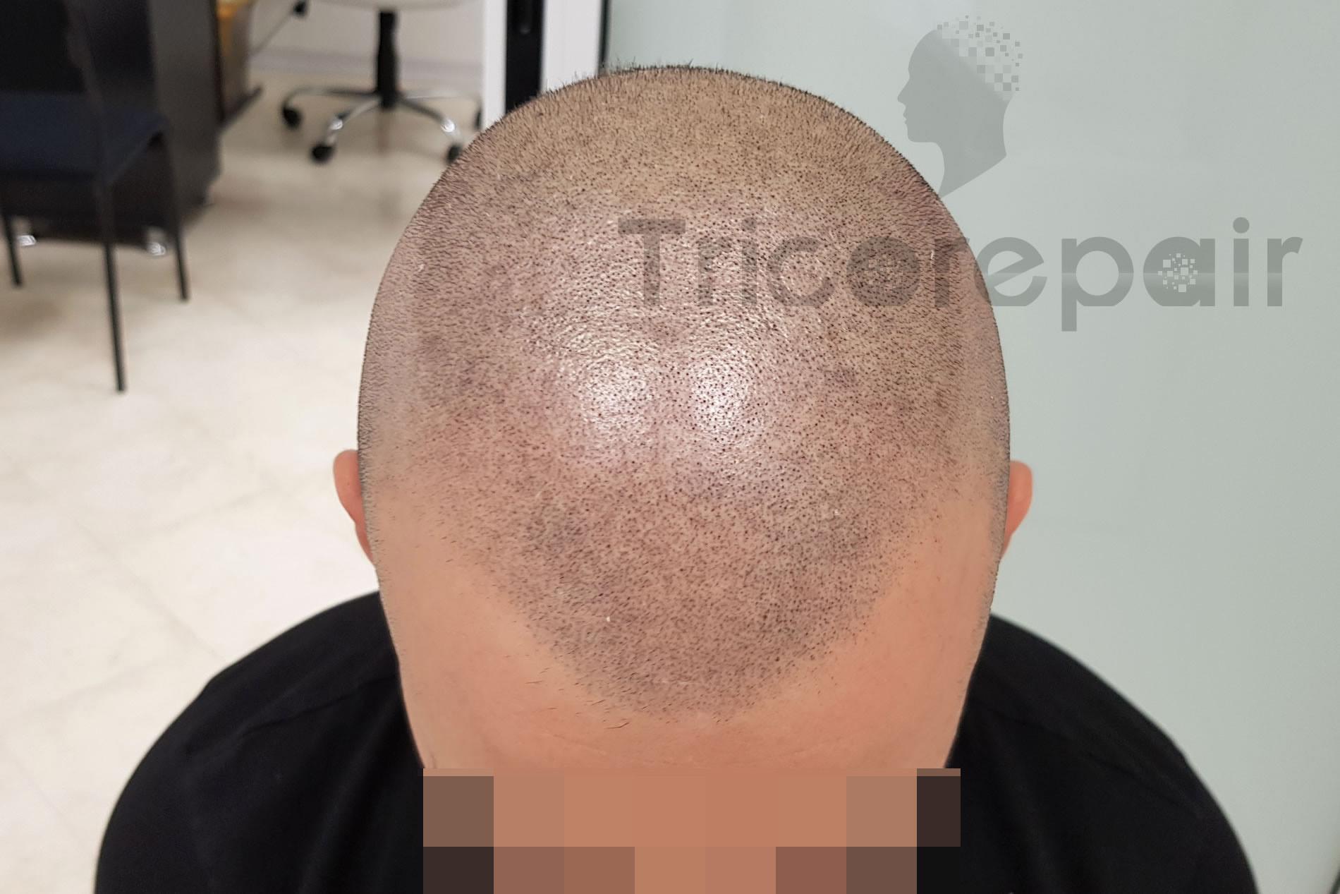 Ricostruzione effetto rasato con micropigmentazione del cuoio capelluto