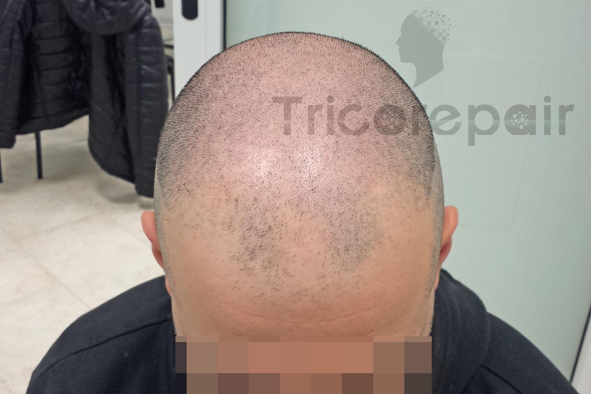 Alopecia androgenetica prima del trattamento